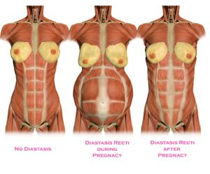 Diastasis Recti (or my abs are breaking)