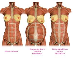 Diastasis Recti (que se me rompe el abdomen)